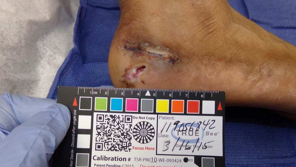 wound needing treatment